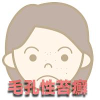 毛孔性苔癬 原因